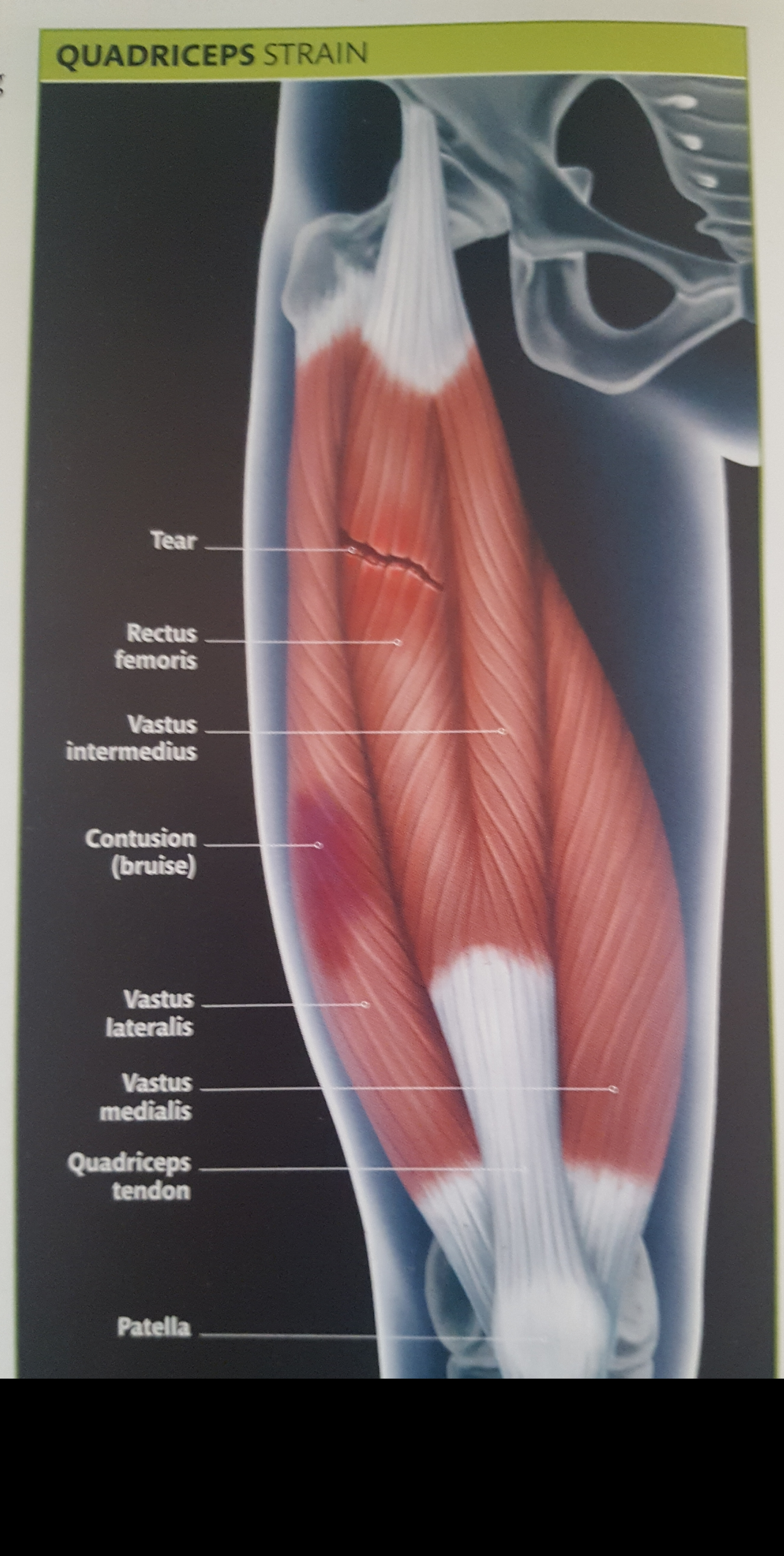 How to Heal Your Quadriceps Strain. - RB Chiropractic